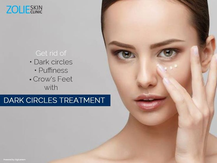 Pin by Zolie Skin Clinic on Under Eye Dark Circles | Dark ...