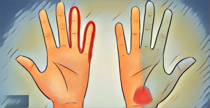 ¿Te hormiguean las manos? Estas señales te dirán si tienes un problema de salud