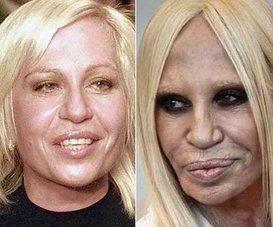 Donatella Versace é conhecida atualmente pelos lábios carnudos, preenchidos com botox. No entanto, nem sempre foi assim. Logo que mudou o look, a dona da famosa grife causou o maior burburinho. No fim das contas, o bocão acabou se tornando uma marca registrada da ricaça