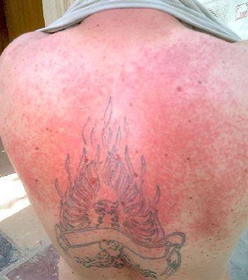 Home remedies for a heat rash