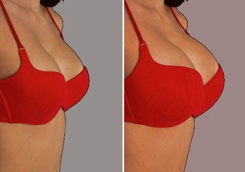 Ca y est! on peut enfin augmenter sa poitrine naturellement et sans chirurgie !
