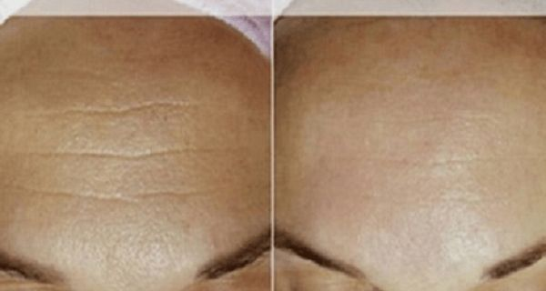 The aging process causes wrinkles which damage our self-esteem. The market offers many products that promise to eliminate all the wrinkles, but, indeed, they fail to do so. Luckily, today's mask will