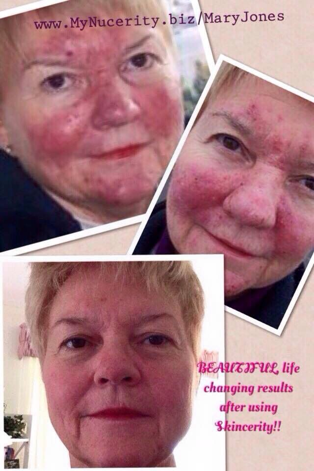 This is a life changing product! Be part of my team www.mynucerity.biz/karensnaiderman