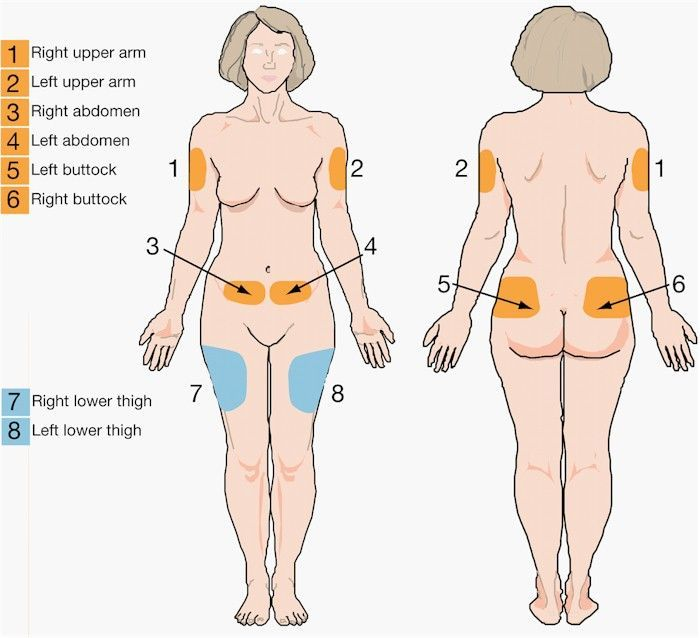 Image result for intramuscular injection sites