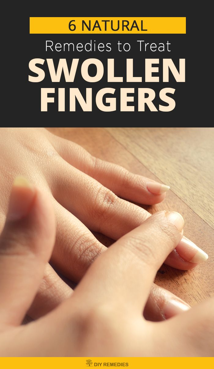 6 Natural Remedies to Treat Swollen Fingers  There are many natural remedies that help you to reduce the pain and swelling at home. Have a look at these remedies and follow them regularly to get rid of the problem. #SwollenFingers #NaturalRemedies