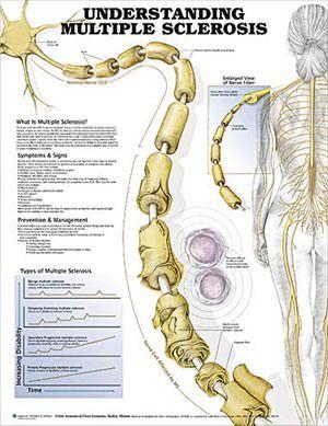 nerves-multiple-sclerosis