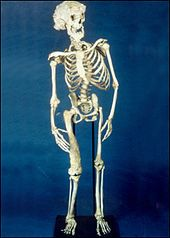 """Joseph Merrick, """"Elephant Man.""""  Look at his right femur, spine and skull.  He must have been in so much pain."""
