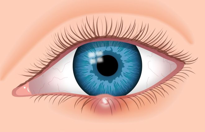 Styes (also spelled sties or stys) are not normally harmful to vision and generally heal within a few days.