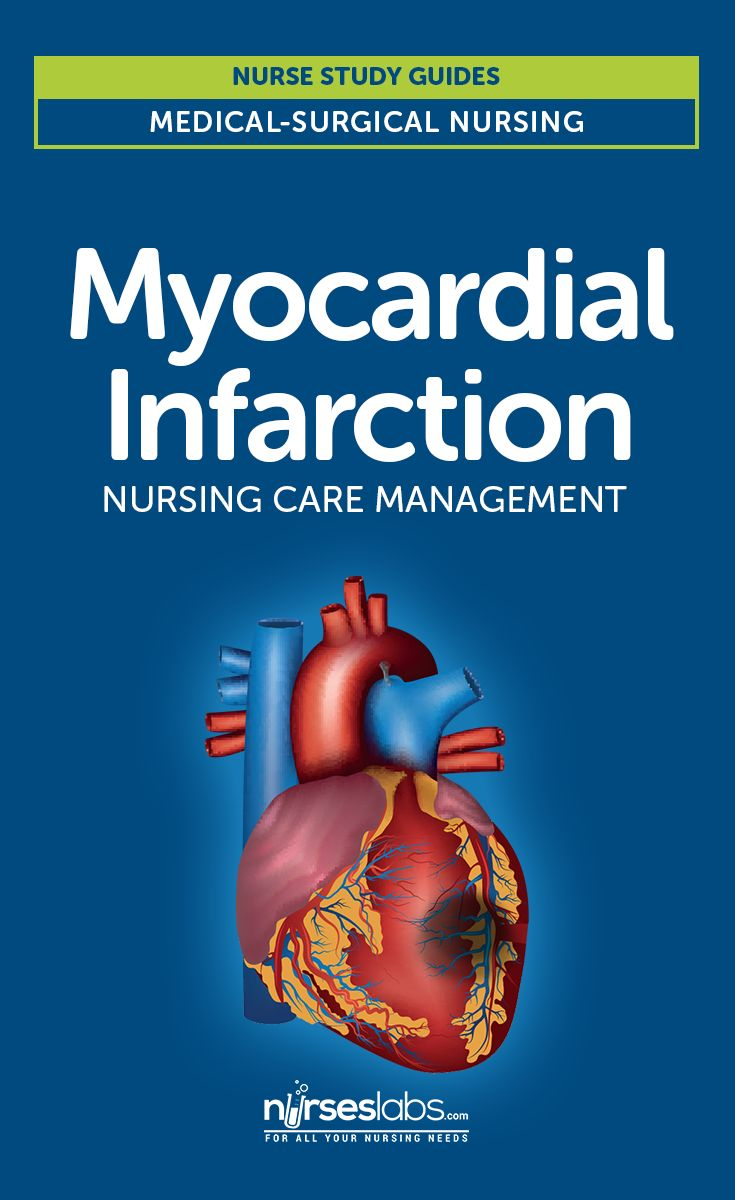 Myocardial Infarction: Nursing Care Management and Study Guide