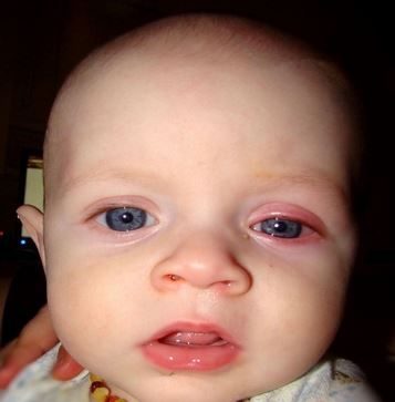 Toddler Eye Infection Natural Treatment