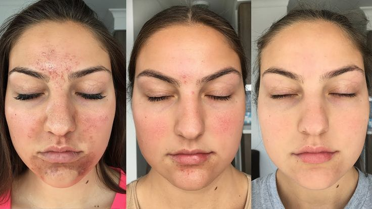 My Accutane Experience + How I Got Clear Skin (Before + After Pictures)