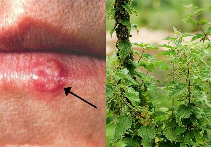 Existen algunos remedios naturales que pueden ayudar a combatir los herpes y a que duren menos tiempo.