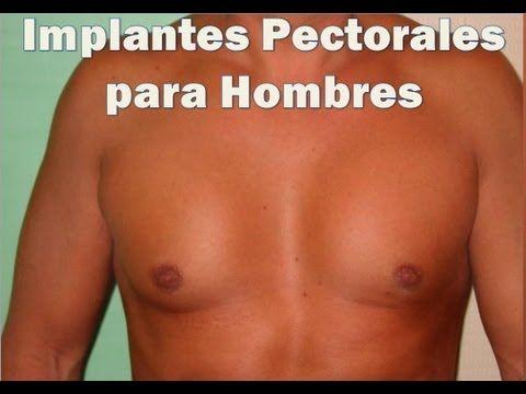 Implantes Pectorales Para Hombres ► Un Procedimiento cada vez más Solicitado