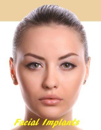 facial implants, facial implants cost, facial implants surgery treatment, facial implants surgery cost, facial implants treatment cost, facial implants
