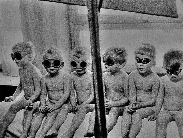Communist Poland    A group of polish kids during a lamp quartz treatment on 60's