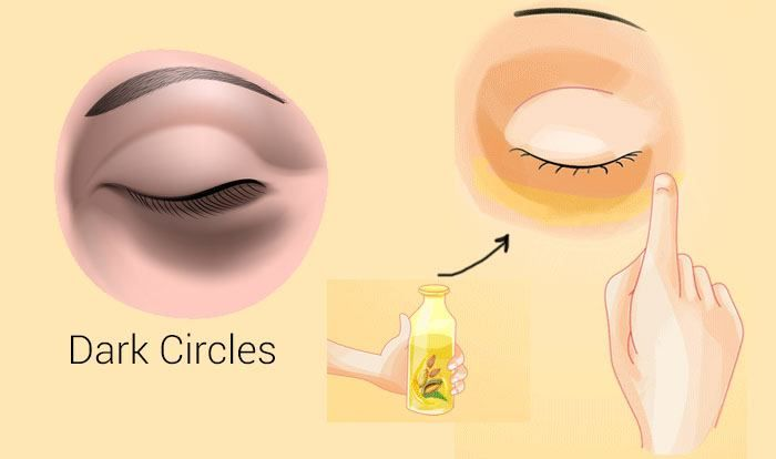 how to fix dry skin under eyes