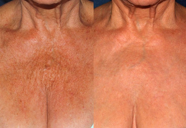 Before and After Ulthera and IPL laser treatment by Dr. Fabi at #CLDerm