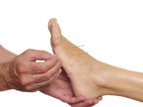 Akupunkturpunkte am Fuß: Ähnlich wie die Reflexzonentherapie, kann auch die Akupunktur am Fuß gegen chronische Schmerzen wie Migräne helfen. Denn in den Füßen enden nach altchinesischer Auffassung nicht nur alle Nervenbahnen – in Ihnen bildet sich auch der gesamte Körper ab. Durch Stimulation bestimmter Punkte können daher Energien im gesamten Organismus freigesetzt werden.