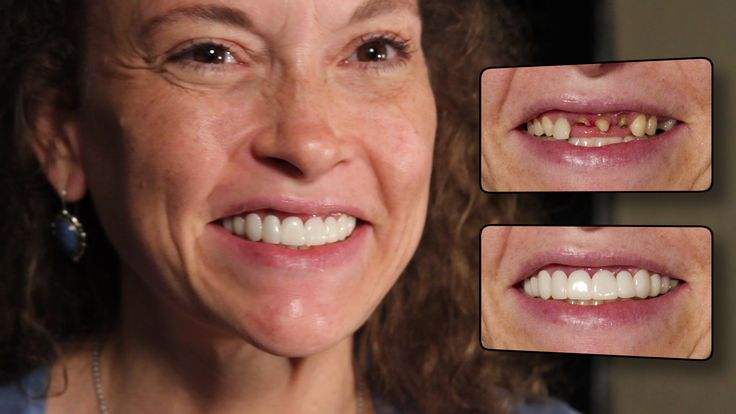 Press on veneers by brighter image lab. This client is an amazing lady to work for.. MUST SEE BEFORE and AFTER Pictures / video https://www.youtube.com/watch?v=-yhJqTKXt7E