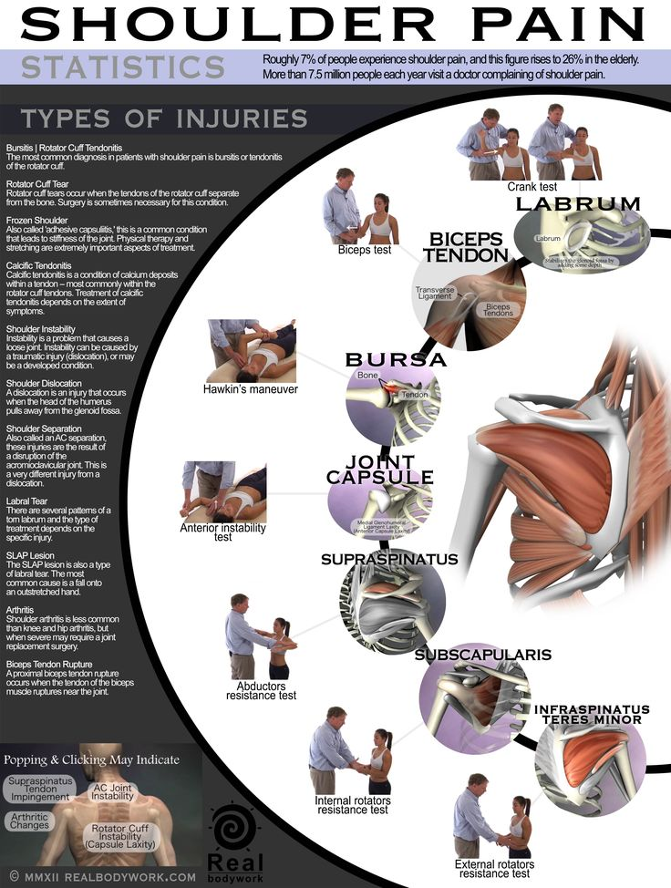 Infographic on shoulder pain illustrating how a doctor manually tests to initially determine possible location of problem.