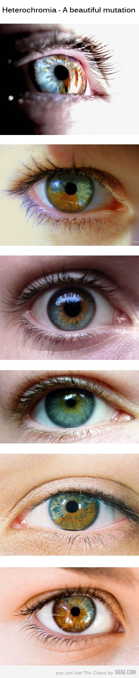 Heterochromia: a beautiful mutation. Heterochromia is relatively rare – it affects around 11 in every 1,000 people in America – but it can develop over time. It can be inherited from one's parents and come about as a result of various conditions – both genetic and acquired. In spite of this, it is not necessarily a sign of underlying health issues.