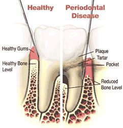 Periodontal (gum) disease describes bacterial growth and toxins that gradually destroy tissue supporting the teeth. Gingivitis and periodontitis are the two main stages of gum disease. Gingivitis involves inflammation of the gums from plaque. It can be treated and reversed with professional cleanings, daily brushing and flossing to remove plaque accumulation. http://www.morganrogersdental.com/dental-services/general-dentistry/gum-disease-treatment.html