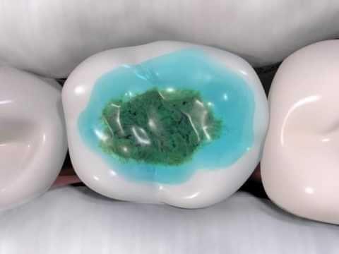 Netreba vŕtať! Takto sa dá vyliečiť zubný kaz!