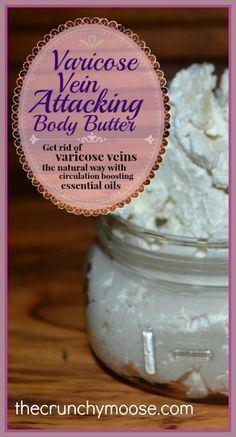 Varicose Vein Attacking Body Butter – How to Get Rid of Varicose Veins Naturally - thecrunchymoose.com