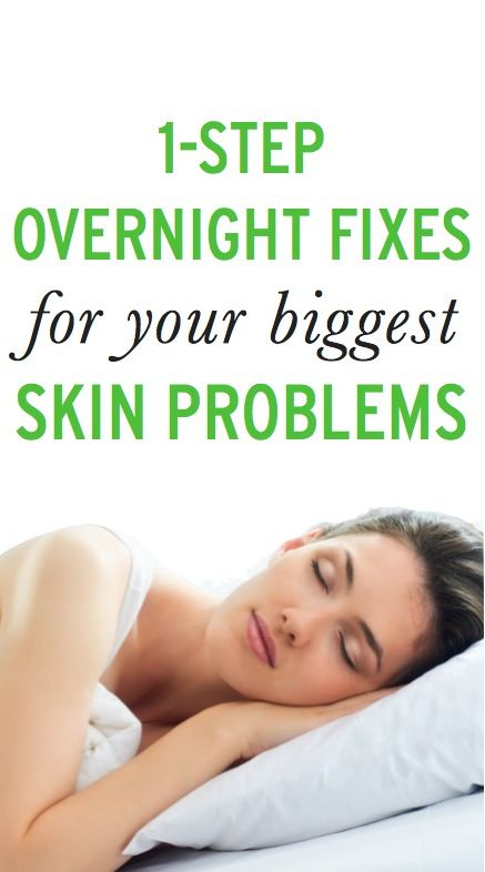 1-Step Overnight Fixes for Your Biggest Skin Problems