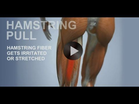 Common Sports Injuries: Hamstring Pull - YouTube