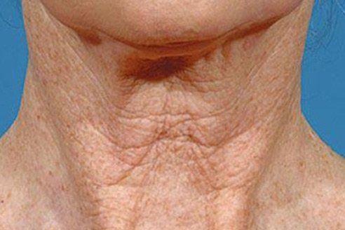 Si vous avez une boule de graisse souple sous la peau, essayez ces 3 remèdes naturels pour la faire disparaître !
