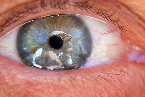 Eye Care softgel herbal Obat Retina Mata Lepas Dan Robek yang alami dan sembuhkan tanpa operasi. Pesan cukup SMS, bisa KIRIM BARANG DULU BARU BAYAR.