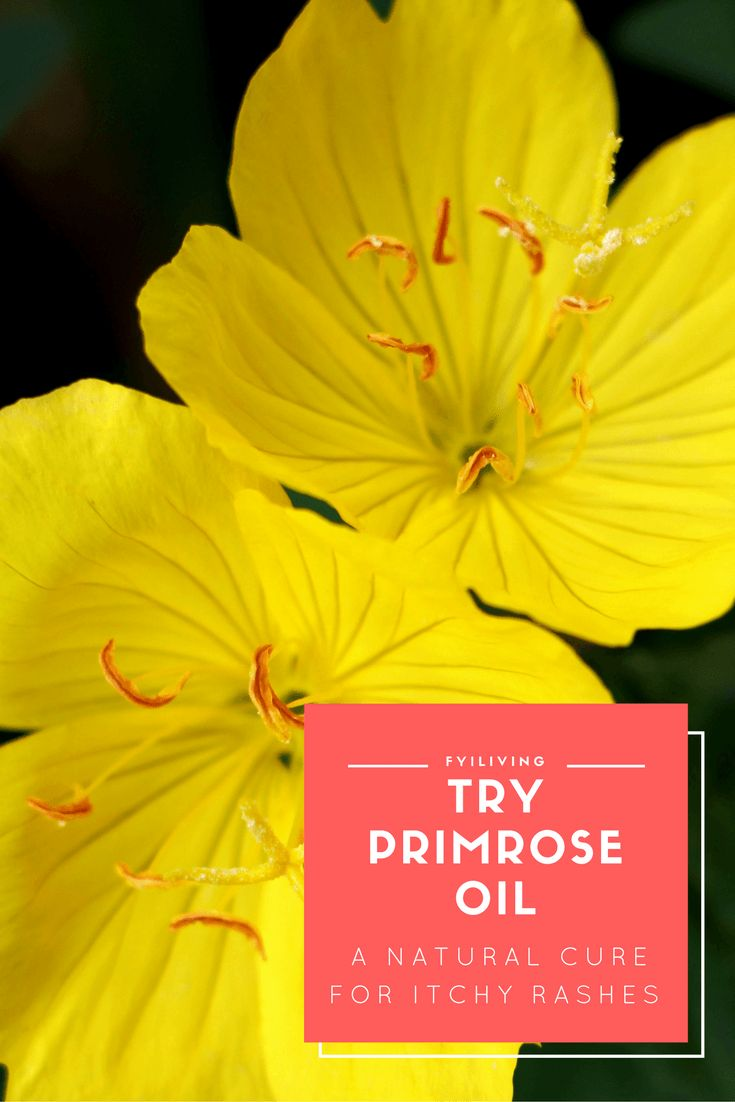 A Natural Cure For Itchy Rashes: Try Primrose Oil