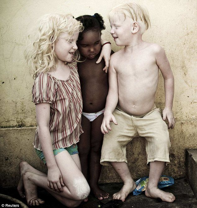 Parents Rosemere Fernandes de Andrade and her partner Joao are dark-skinned Afro-Brazilians, yet three of their five children are albinos