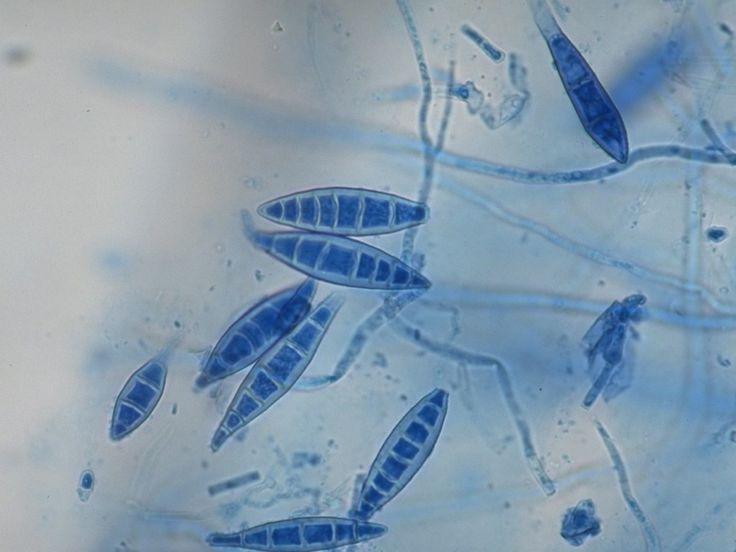 microsporum(αγενης)- nannizzia ( εγγενης) - Gymnoascaceae- Onygenales-Plectomycetes