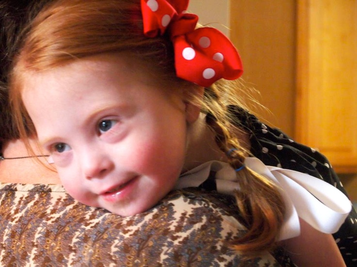 What Down Syndrome Looks Like...
