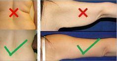 Destrua a gordura nas costas e a flacidez nos braços com estes exercícios!   Cura pela Natureza
