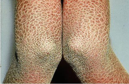 Στην ιχθύαση το δέρμα καλύπτεται από παχιά λέπια, σαν τα λέπια των ψαριών