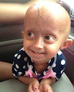 233 best Progeria images on Pinterest