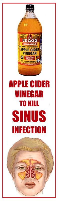 A sinus infection, also known as sinusitis, is an inflammation of the tissue lining of the sinuses. Healthy sinuses are filled with air, but when blocked, germs can grow within and cause an infection.  Symptoms of sinusitis include fevers, facial pain, and headaches while the most common causes include allergic rhinitis, common cold, deviated septum,...