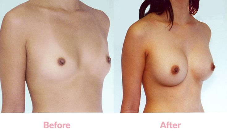 Patient HA BEFORE & 2 YEARS AFTER Round Mentor Implants, 200cc, 'Under the Muscle', Incisions under the Breasts