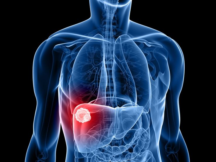 The Main Causes and Symptoms of Liver Cancer