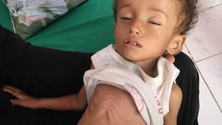 The BBC's Orla Guerin sees the suffering of cholera and malnutrition victims in Yemen's civil war.