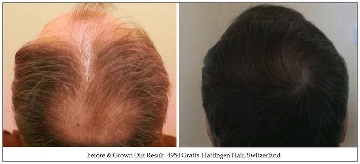 Crown or Vertex Surgical Hair Restoration