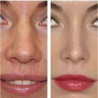 Die Nasenkorrektur ist eine der am häufigsten benötigten Veränderungen