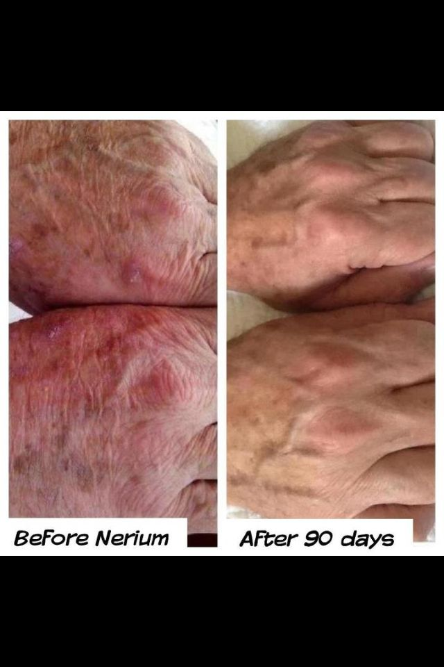 Nerium not just for your face!!Hands give away age often sooner than our faces. Men & women get results! All Before & After Pictures are taken by customers & no photoshop. Don't forget to take your picture. Get your own bottle from www.karijudy.nerium.com