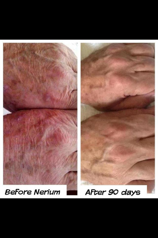 Nerium no sólo funciona en el rostro !! Observa las manos. Los hombres y las mujeres obtienen resultados! Antes y Después no photoshop. No se olvide de tomar su imagen. Obtenga su propia botella de http://taniavelazquez.nerium.com