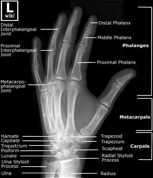Radiographic Anatomy - Hand Oblique