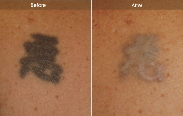 63 best tattoo removal before and after images on pinterest for Best tattoo removal los angeles