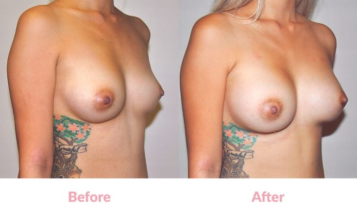 Patient DB BEFORE & AFTER 'Tear-Drop' Polyurethane Foam-Covered Silicone Implants, Two Different Sizes to Correct Size Asymmetry (Right 230cc, Left 275cc),'Under the Muscle', Incisions under the Breasts